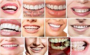 Şeffaf diş teli orthero invisalign