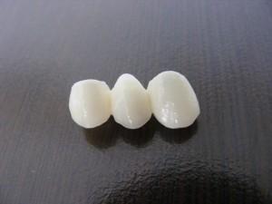 Zirkonyum porselen diş