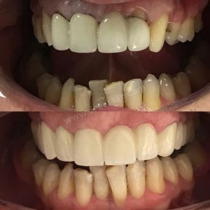 Eski diş kaplama ne zaman değişmeli