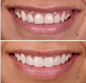 Estetik Diş Eti