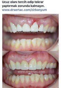 Kaplama diş örnekleri. Zirkonyum kalitesi