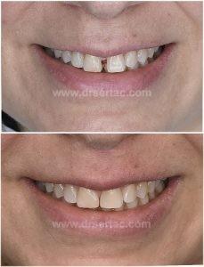 Ön iki diş aralığı nasıl kapandı? Diastema tedavisi önce sonra fotoğrafı