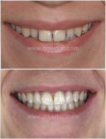 Ön iki diş aralığı kapatma Lamina