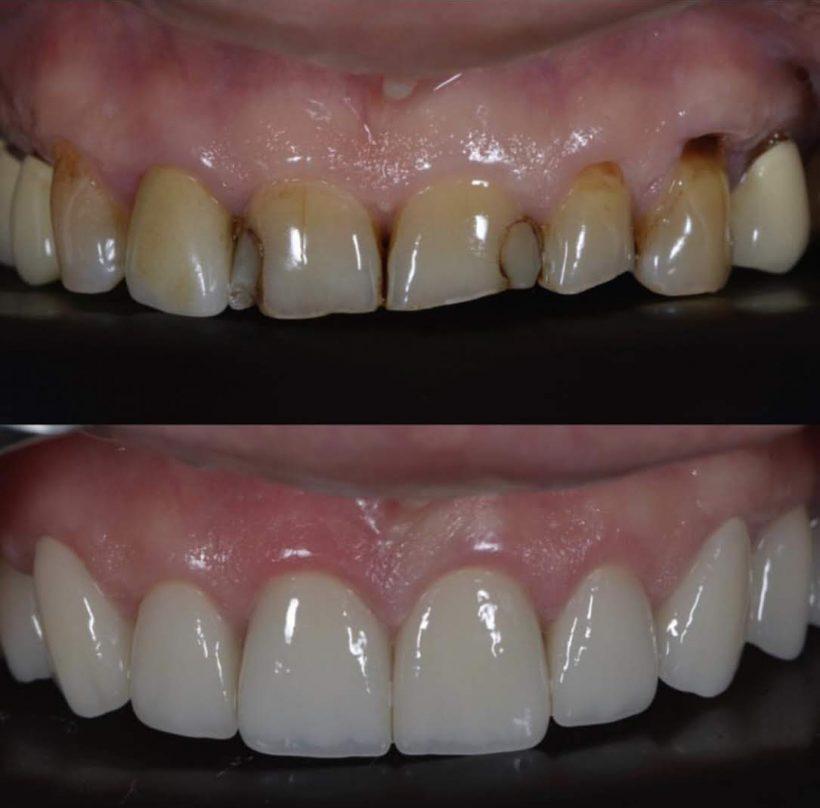 Estetik diş kaplama