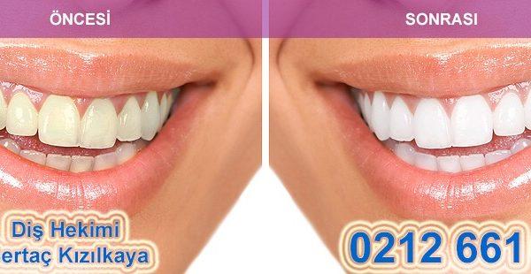 diş beyazlatma önce sonra