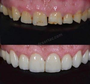 Kaplama Önce Sonra Diş Hekimi Sertaç Kızılkaya