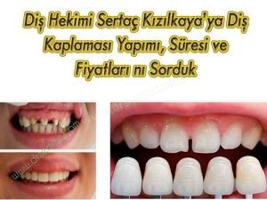 Diş kaplama süresi