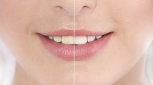 Diş beyazlatma önce sonra örnek
