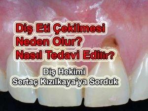Kaplama diş ve diş eti çekilmesi