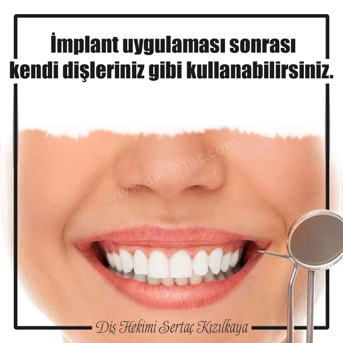 İmplant diş fiyatı 2020