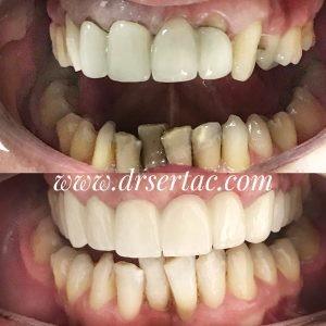 Porselen diş kaplama önce sonra Diş Hekimi Sertaç Kızılkaya