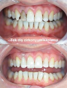 Kanal tedavisi nedeni ile oluşan diş renklenmesinde tek diş zirkonyum kaplama ile çözüm