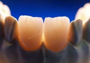 Zirkonyum diş kaplama ışık geçirgendir.
